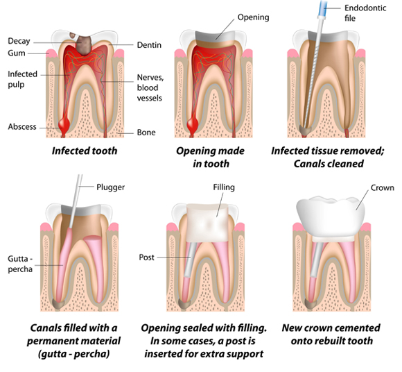 Chart - Root Canal Treatment