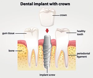 Diagram - Dental Implants with Crown
