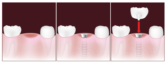 Diagram - Dental Implants