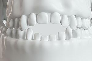 Pacifier Teeth
